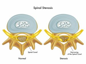 Spine vertebra normal and stenosis of the spine