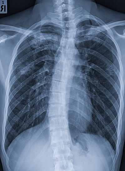 Scoliosis X-ray