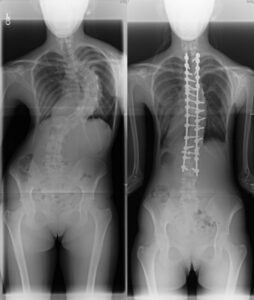 Pre and post scoliosis surgery x-rays