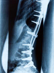 Spine hardware in back