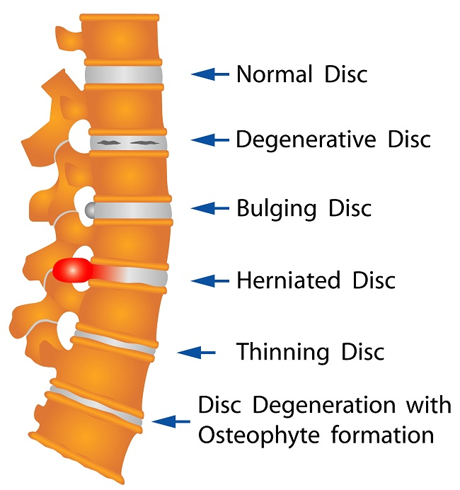 Types of Spine Disc - education