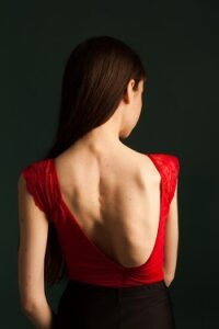 Young woman with scoliosis in dance leotard