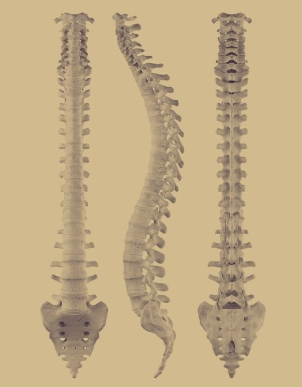 3 views of spine with brown background shown to Grand Prairie TX Patient