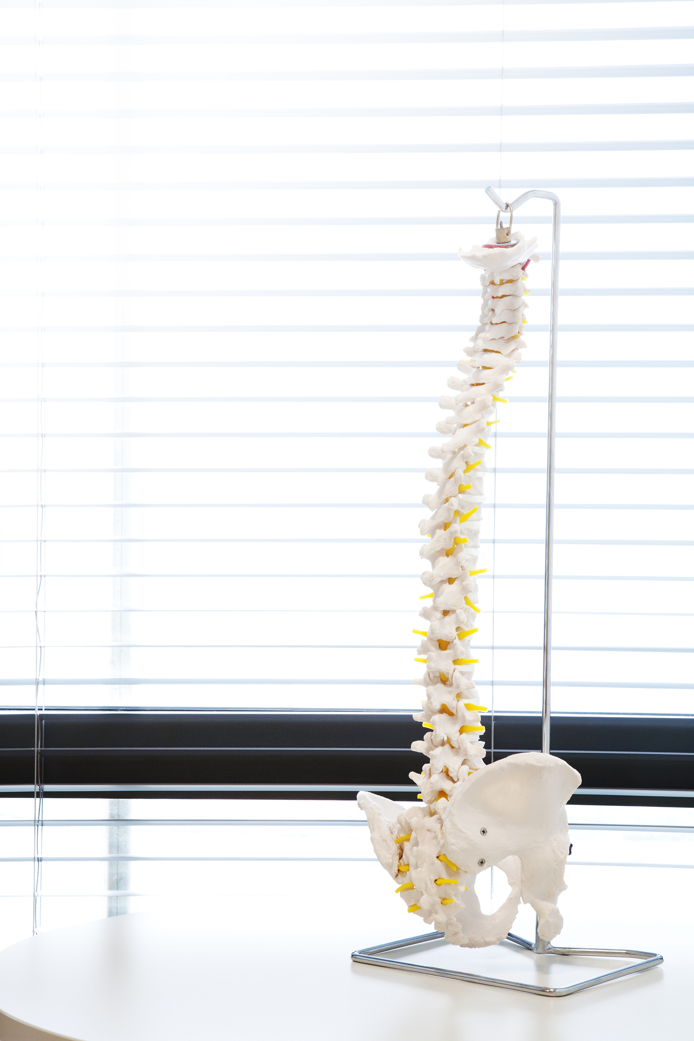 SPINE model shown to Lewisville TX patient
