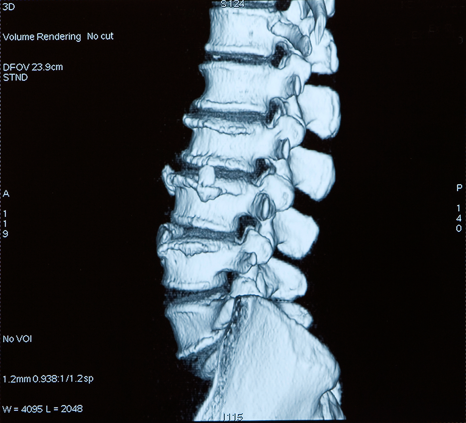 Computerized Tomography of spine