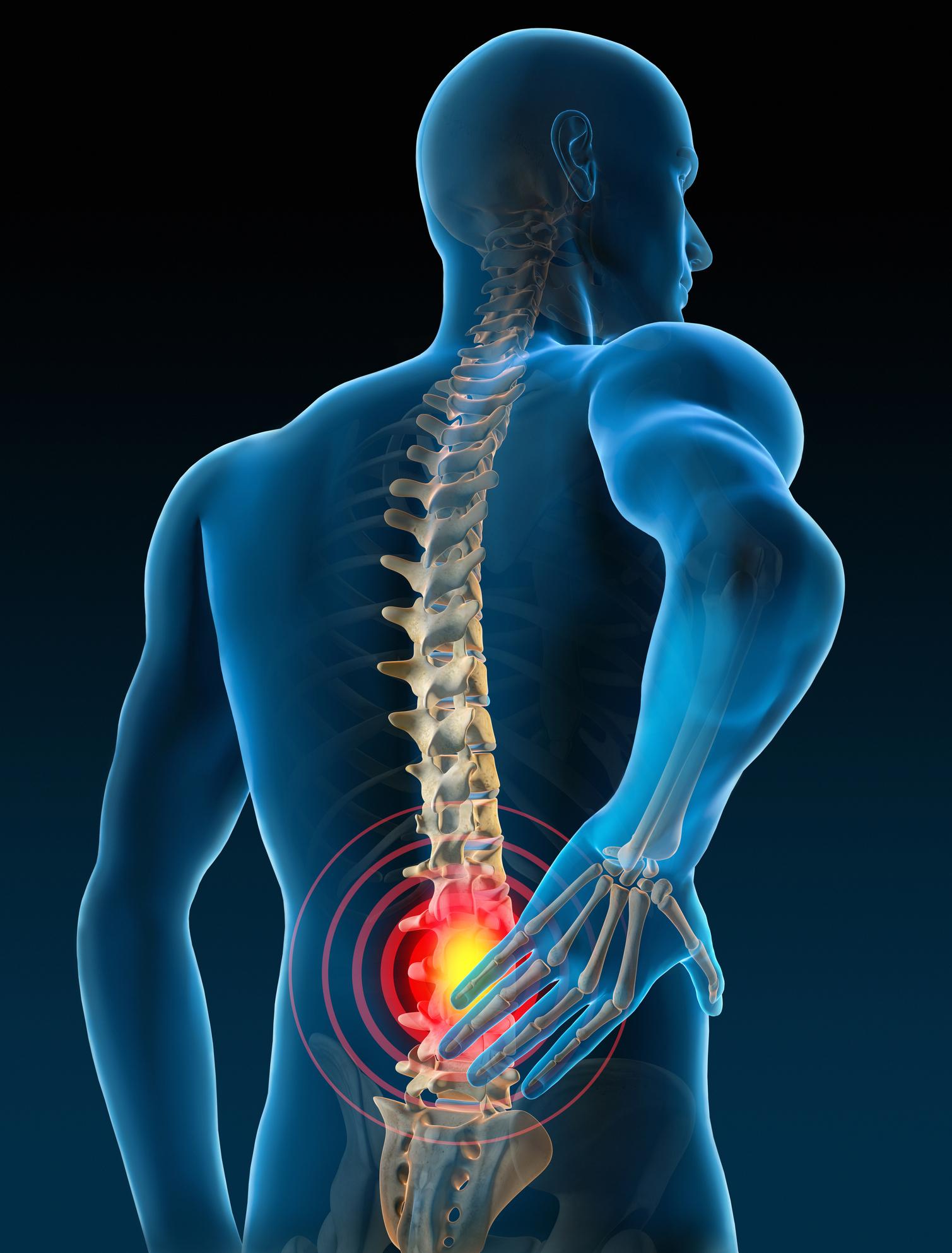 Scoliosis Back Pain illustration