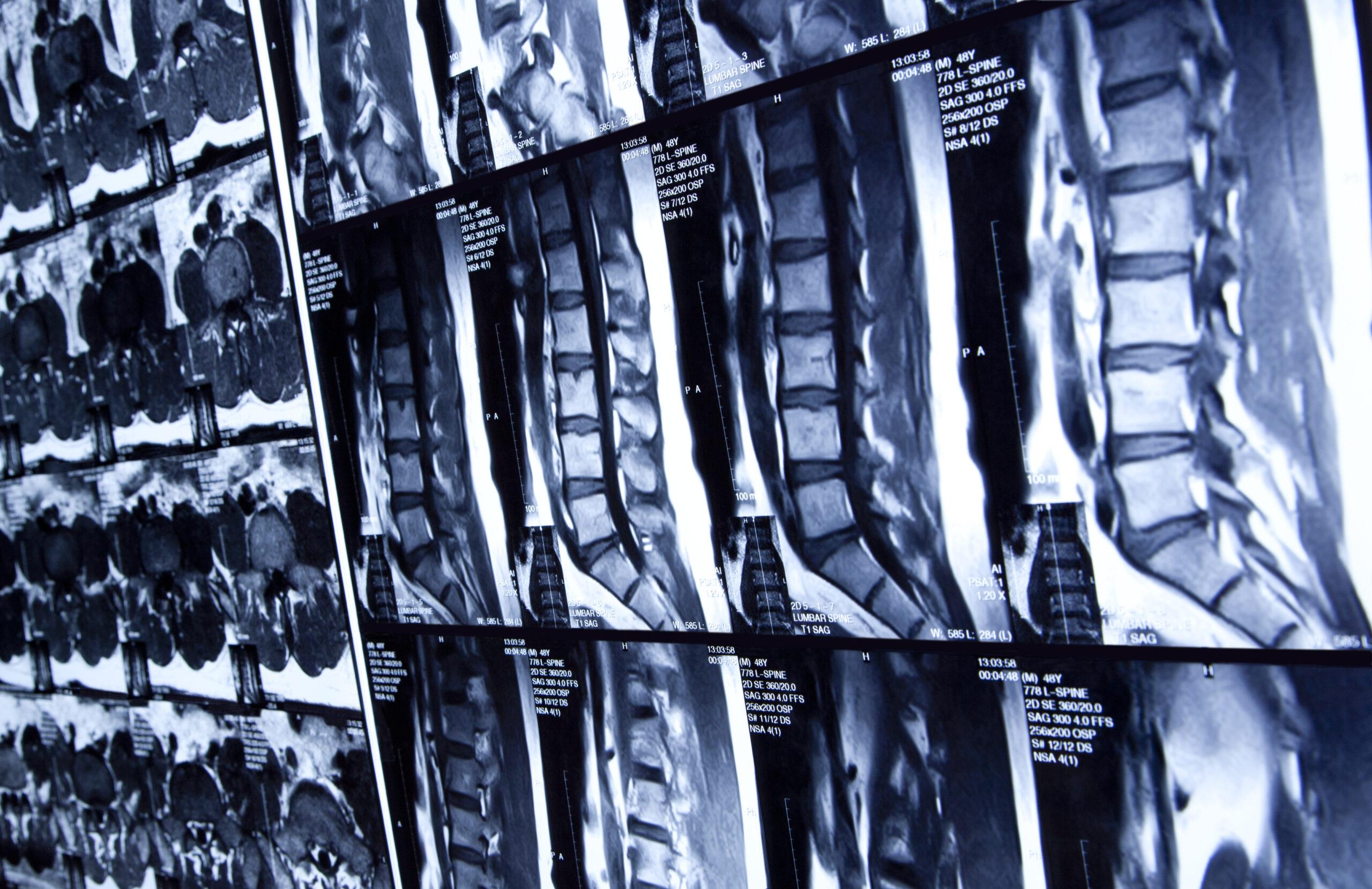 MRI scan of human lumbar spine