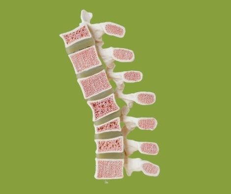 Diagonal look at spine shown to Rockwall TX patient