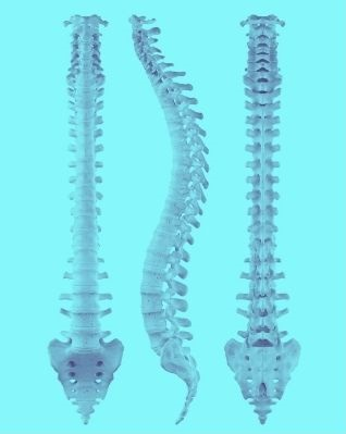 Spine views shown to Rowlett TX patient