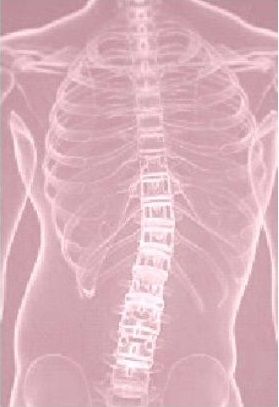Spine x-ray of Lewisville TX patient