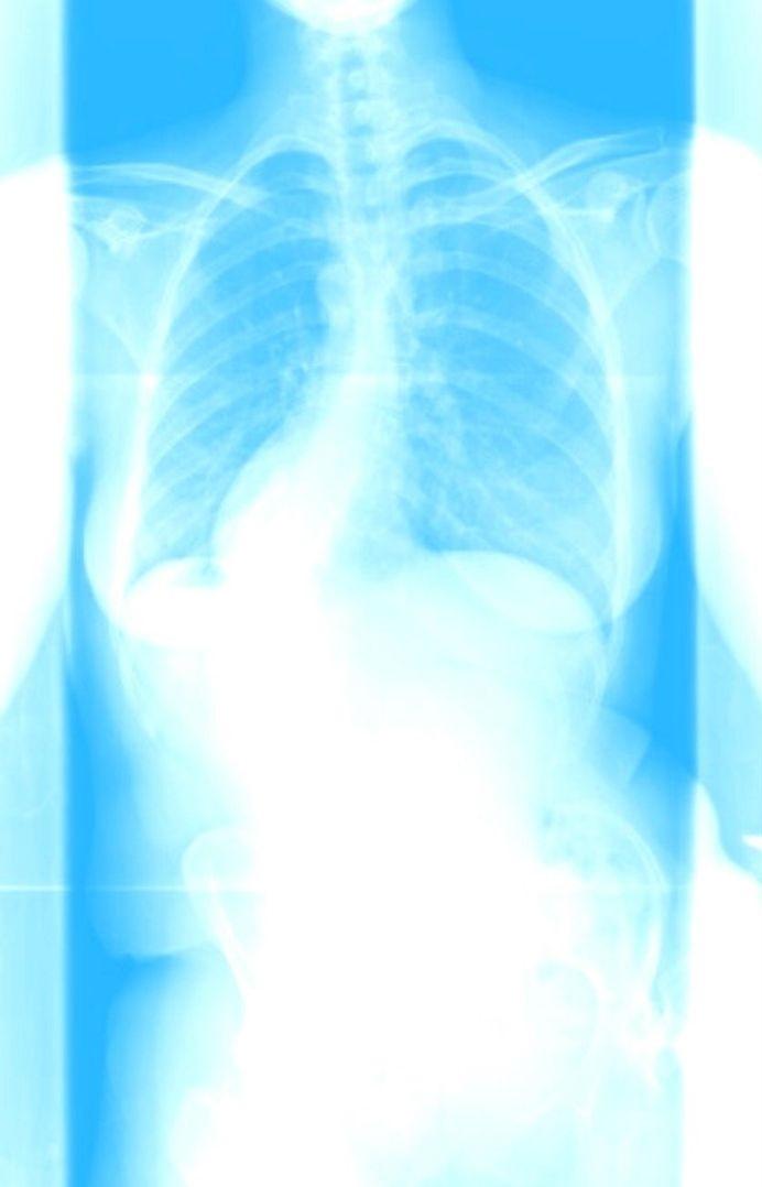 Spine xray pre surgey light blue