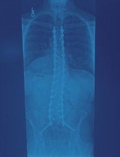 blue scoliosis x-ray of Grapevine TX patient